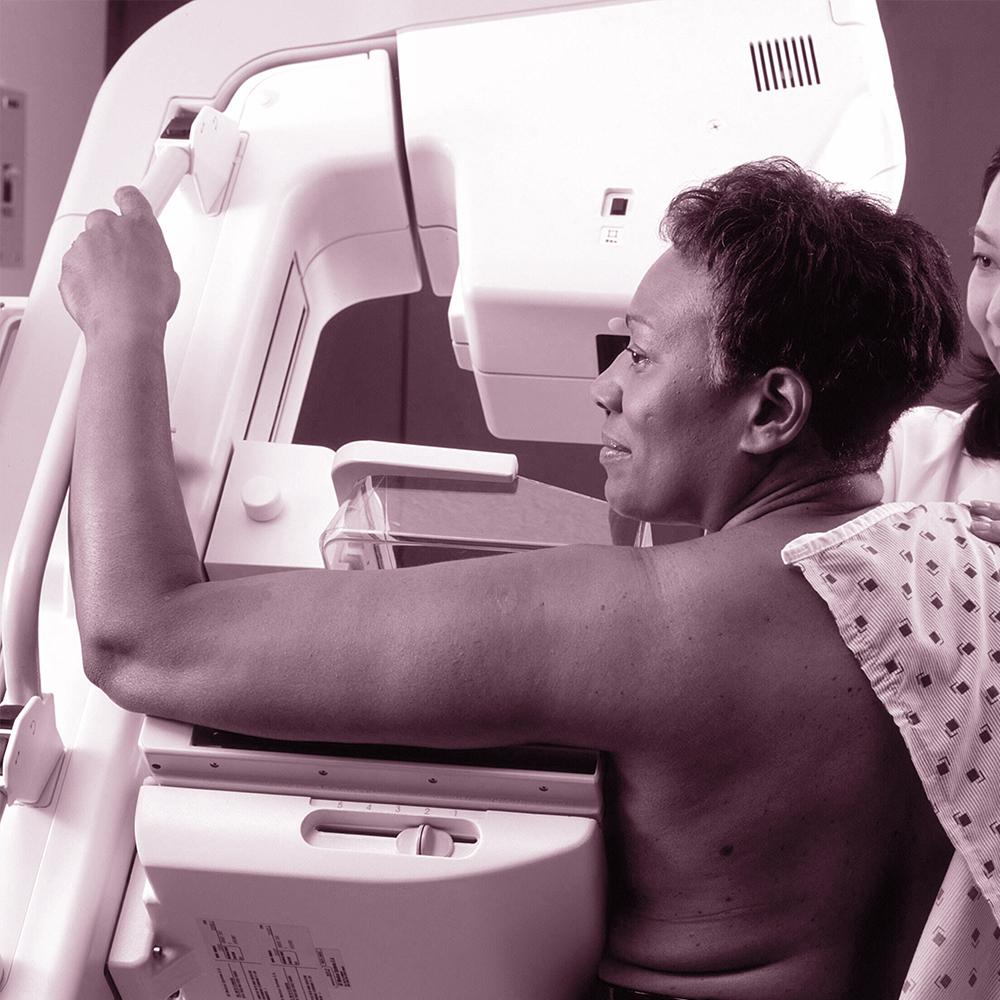 breast density FAQs woman in a mammogram breast cancer screening